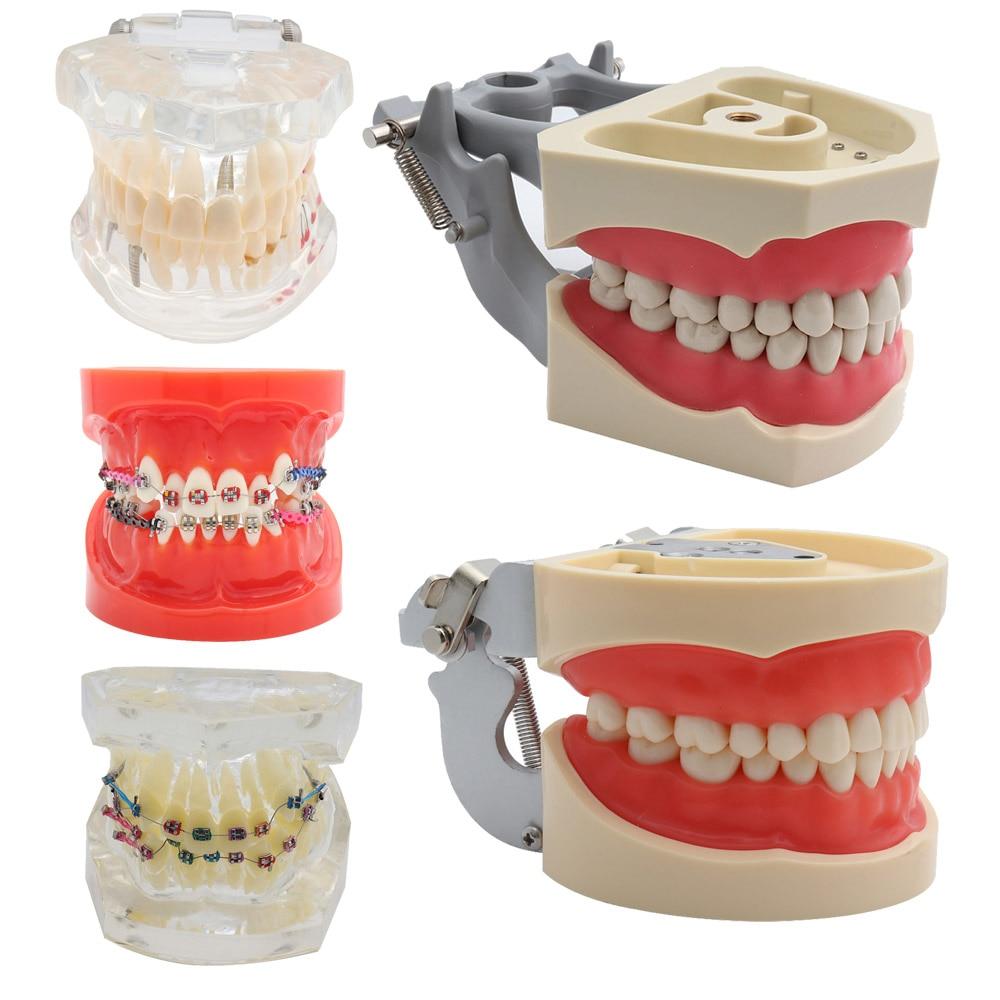 modelo padrao dental dos dentes modelo ortodontico dos dentes com suportes tubos bucais fio da ligadura