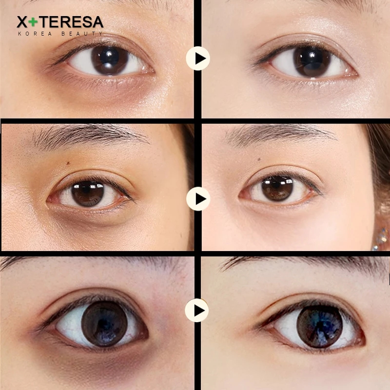 Black Pearl Eye patches Natural Moisturizing Gel Collagen Eyes Masks Remove Dark Circles Anti Age Bag Wrinkle 60PCS Skin Care M-2