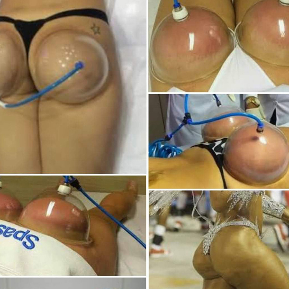Fatten Buttocks Back Cupping Breast Massager Chest Hips Trainer Butt Bil Lifting Colombien Sharpening Hijama Suction Cups Vacuum
