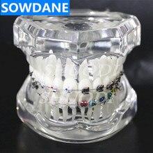 Стоматологический ортодонтический модельный 4 вида кронштейнов с керамическим самолигирующийся брекет металла самолирующийся с трубчатой лигатурной