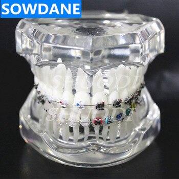 Dentale Ortodontico Modello di 4 tipi Staffe con Ceramica Self Ligating Staffa In Metallo Auto Ligating con il tubo archwire legatura