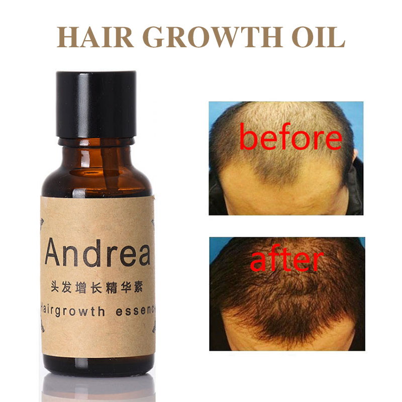 2pcs Unisex Hair Loss Treatment Hair Essential Oil Ginger Extract Hair Regrowth Vitamins Beard Oil Growing Facial Hair For Men
