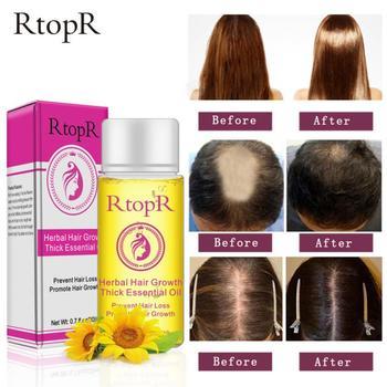 20ml szybki silny wzrost włosów utrata włosów produkty olejek płynny zabieg zapobiegający utrata włosów produkty do pielęgnacji włosów tanie i dobre opinie efero CN (pochodzenie) 1 bottles Hair Care Essential oil 2 years wholesale dropshipping