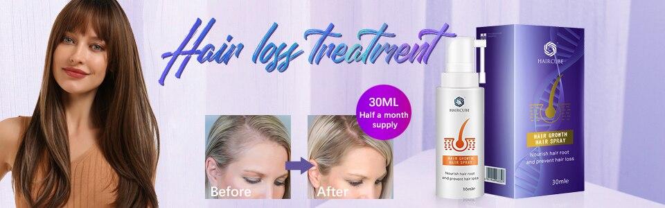 anti tratamento da perda de cabelo para