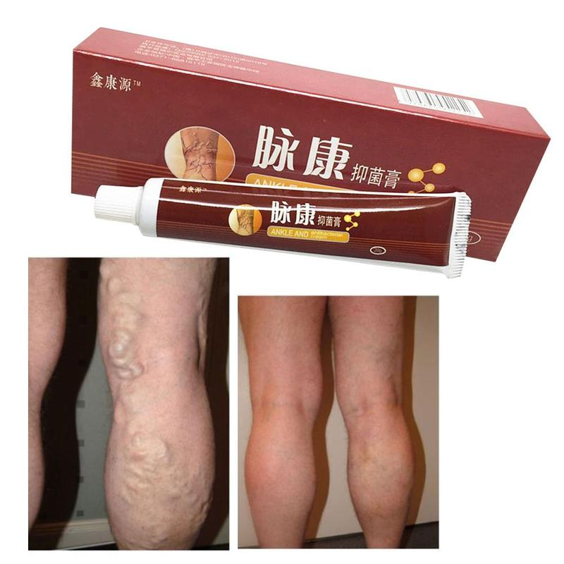 Varicose Veins Treatment Cream Vasculitis Phlebitis Spider Pain Varicosity Angiitis Remedy Removal Herbal Cream Skin Treatment