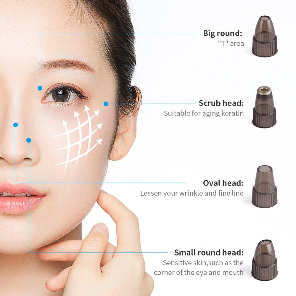 frio cravo acne remoção sucção preto mancha