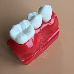 Image 4 - Diş öğretme İmplant analizi taç köprü çıkarılabilir modeli diş gösteri diş modeli