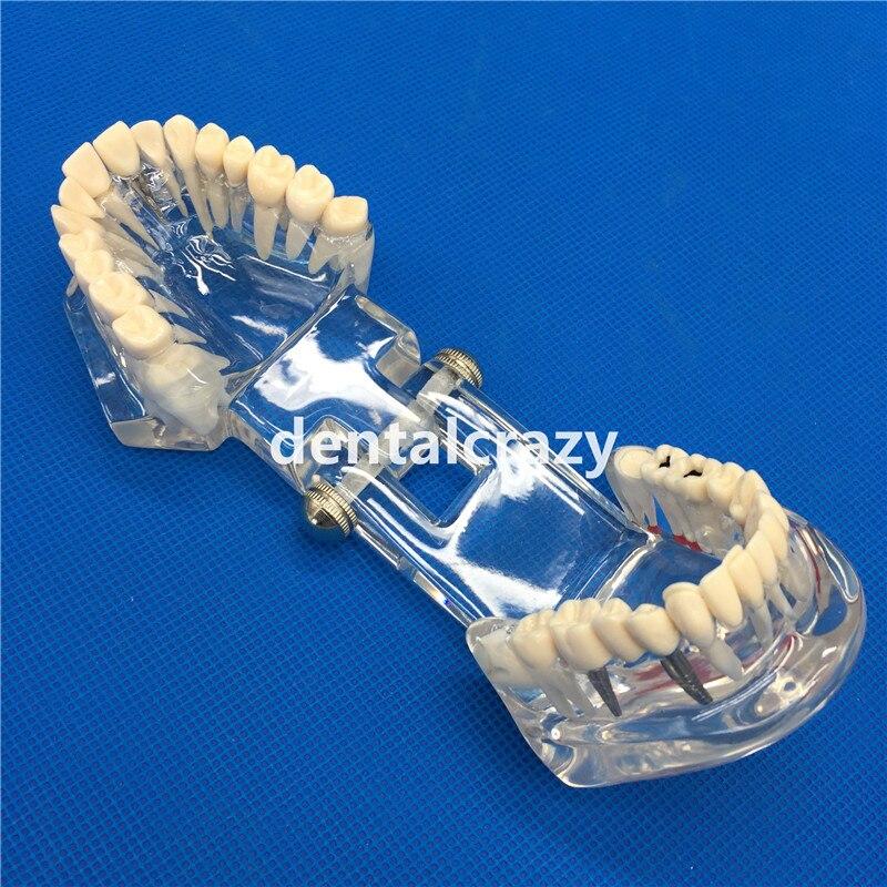 implante com ponte da restauracao dentista do 05