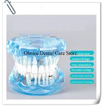 Dental Implant teeth model M2001 fixed bridge teeth model dental caries tooth model dental teaching model cheap hooky Acrylic Implant and Restoration Model