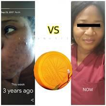 Vitamin C Soap Lightening Brightening Beauty Skin Soap Natural Extracts