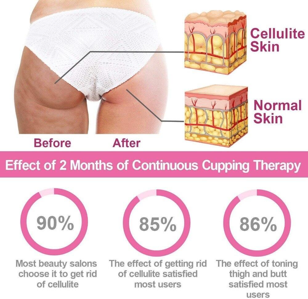 Fat Control Roller Massager