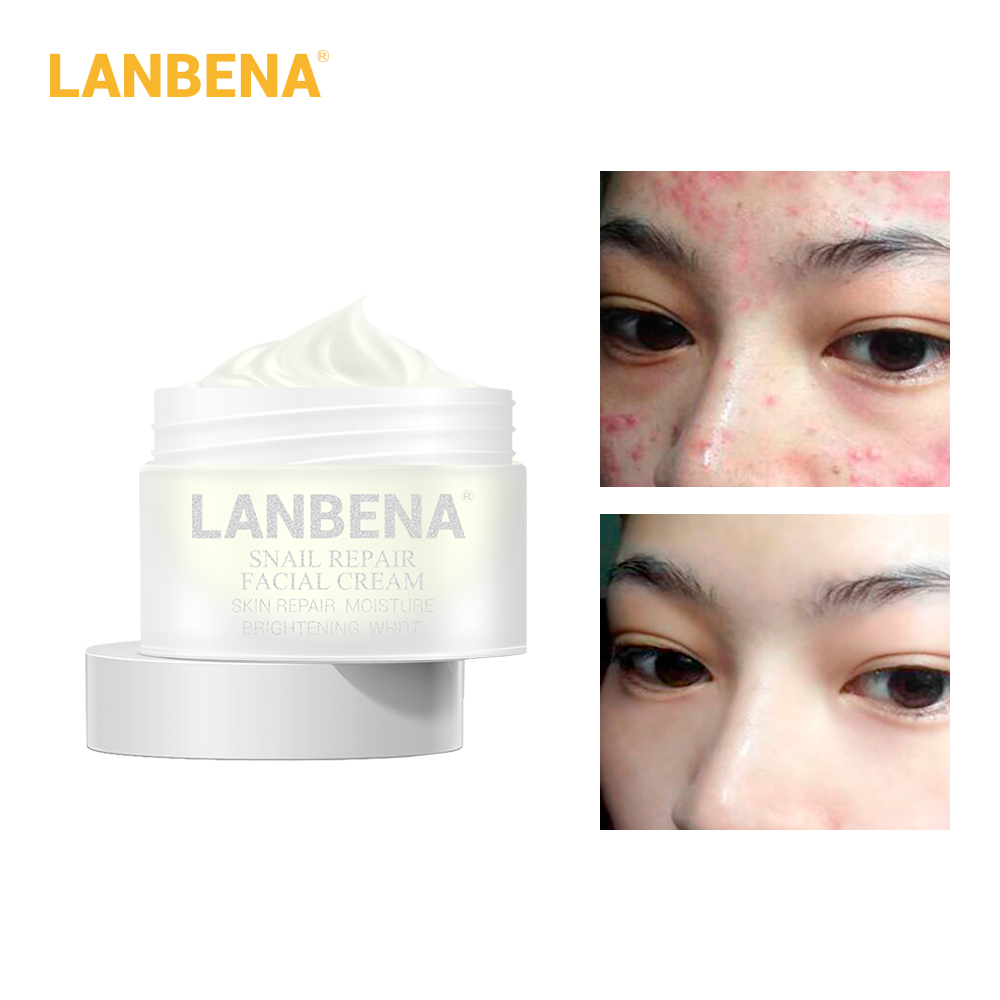 LANBENA Snail Repair Whitening Facial Cream Day Cream Anti Wrinkle Anti Aging Acne Treatment Moisturizing Firming Skin Care 30g
