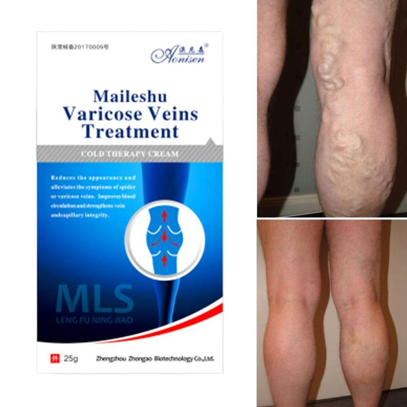 Varicose Veins Ointment Natural Treatment Spider Varicose Veins Cream For Relief Phlebitis Angiitis Leg Smearing Cream Remedies