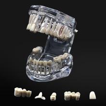 1 Pcs Dental Model Teeth Implant Restoration Bridge Teaching Study Tooth Medical Science Disease Dentist Dentistry Products