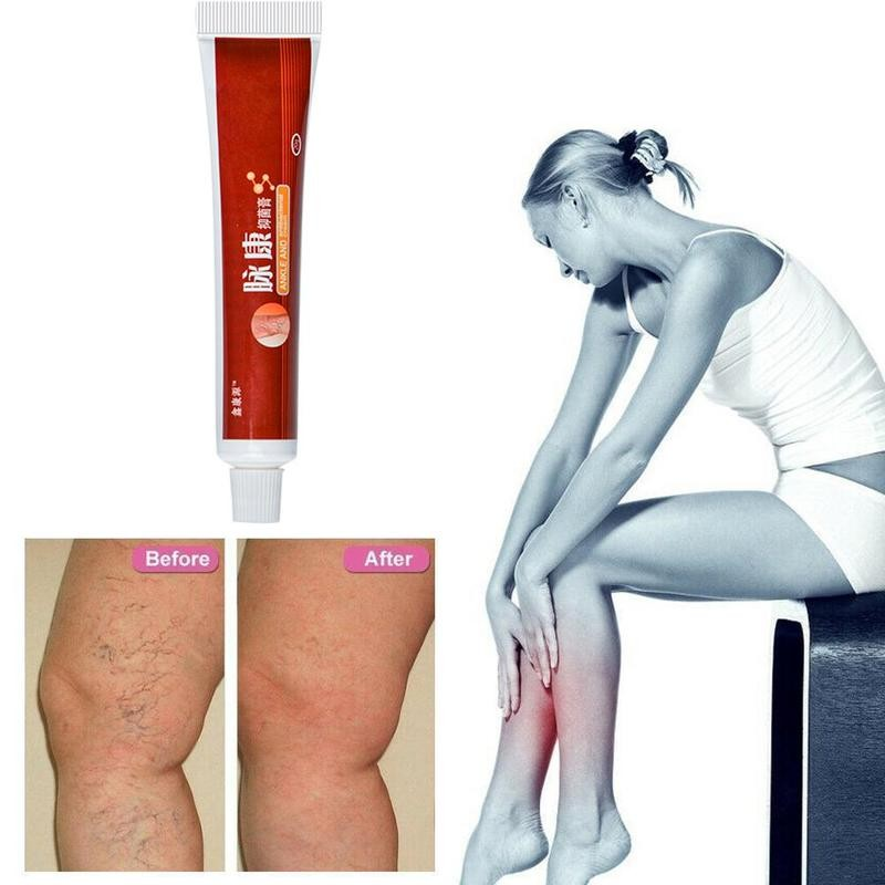 1pcs Varicose Veins Treatment Cream Varicosity Angiitis Remedy Ointment Relief Veins Pain Phlebitis legs Health Body Care