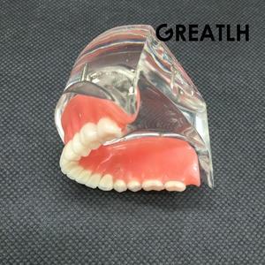 Image 5 - Aparelho mandibular dental interior, modelo mandibular mandibular com estudo de ensino dental de restauração de instrumentos