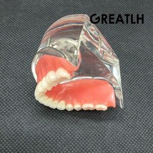 Image 5 - Nha Khoa Overdenture Nội Thất Mandibular Răng Hàm Dưới Mẫu Mandibular Với Giả Phục Hồi Răng Nha Khoa Giảng Dạy Học