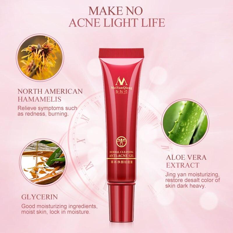 Hot Sale Herbal Cleansing Gel Anti Acne Treatment Cream Herbal