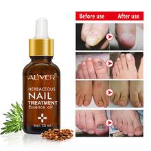 30ml Professional Nail Treatment From Fungus Feet Hand Disinfection Fungal Oil Pen Manicure Tools