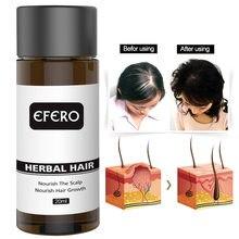 20ml Haar Essenz Verlieren Verhindern Haarausfall Ingwer Ätherisches Öl Behandlung Haarpflege Wachstum Flüssigkeit Anti-haarigen Weiches Haar frauen TSLM1