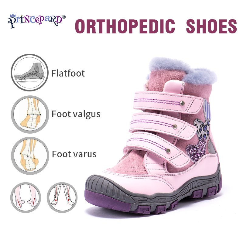 Princepard 100% Natural Fur Genuine Leather Orhopedic Shoes For Boys Girls 22-36 Size New Winter Orthopedic Boots For Kids