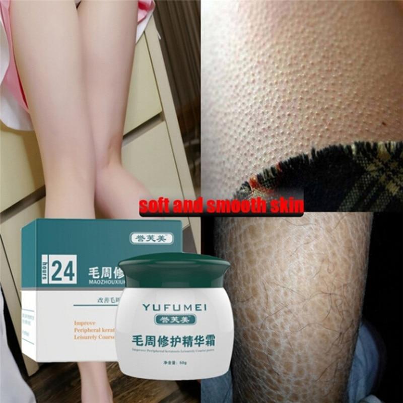 50g cura della cheratosi pilery/Kp/pelle di pollo lozione per il corpo crema per la riparazione della pelle cura della pelle essenza idratante e nutriente 1