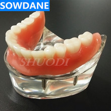 купить Dental Overdenture Interior Mandibular Lower with 4 Implants Restoration Teeth Study Teach Model дешево