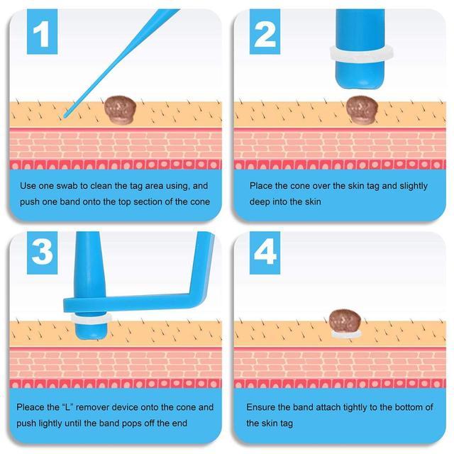 Micro peau étiquette dissolvant dispositif kit corps efficace taupe verrue dissolvant peau étiquette enlèvement acné bouton défaut traitement peau soin outil