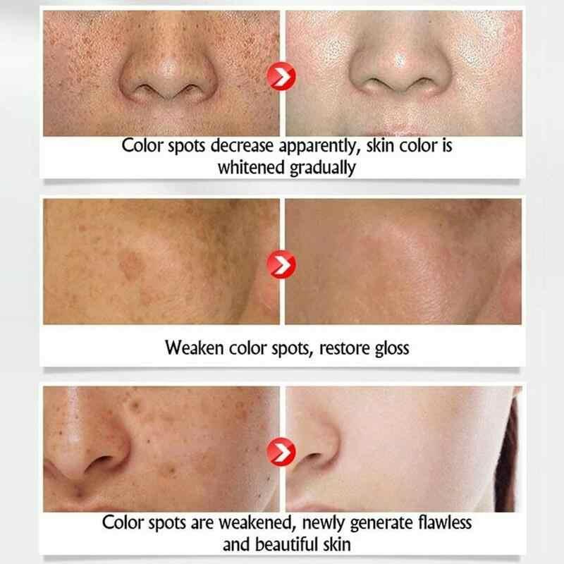 15ml arroz branco rosto soro pele beleza soro hidratante clareamento facial cuidados com a pele coreia compõem