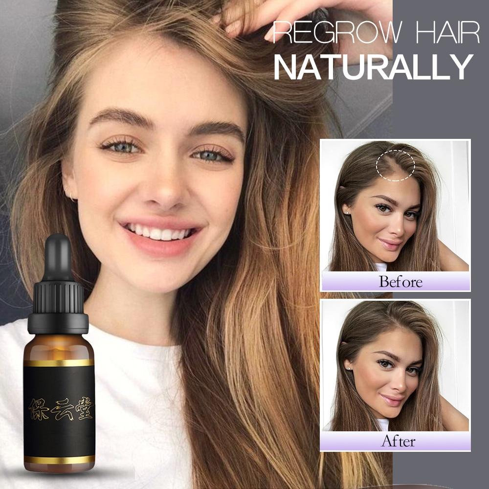 Hair Care Hair Growth Essential Oils Essence Hair Loss Liquid Health Care Beauty Dense Hair Growth Serum Fast Grow Hair 30ml