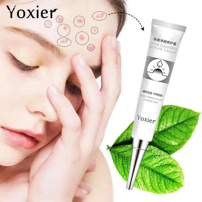 Yoxier Acne Treatment Face Cream Anti Acne Scar Removal Pimple Blackhead Moisturizing Whiten Oil-control Shrink Pores Skin Care