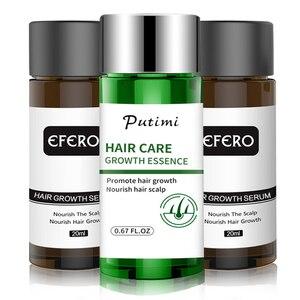 Image 1 - EFERO Haar Wachstum Essenz Schnelle Leistungsstarke Haarausfall Produkt Bart Öl Wachstum Serum Ätherische Öle Haar Wachstum Behandlung Haare Pflege