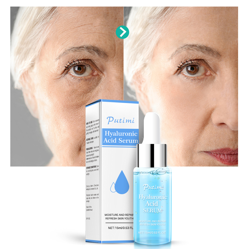 Image 4 - Argireline Hyaluronic Serum Six Peptides Anti Aging Wrinkle Essence Whitening Cream Acne Treatment Scar Removal Face Essence-in Serum from Beauty & Health