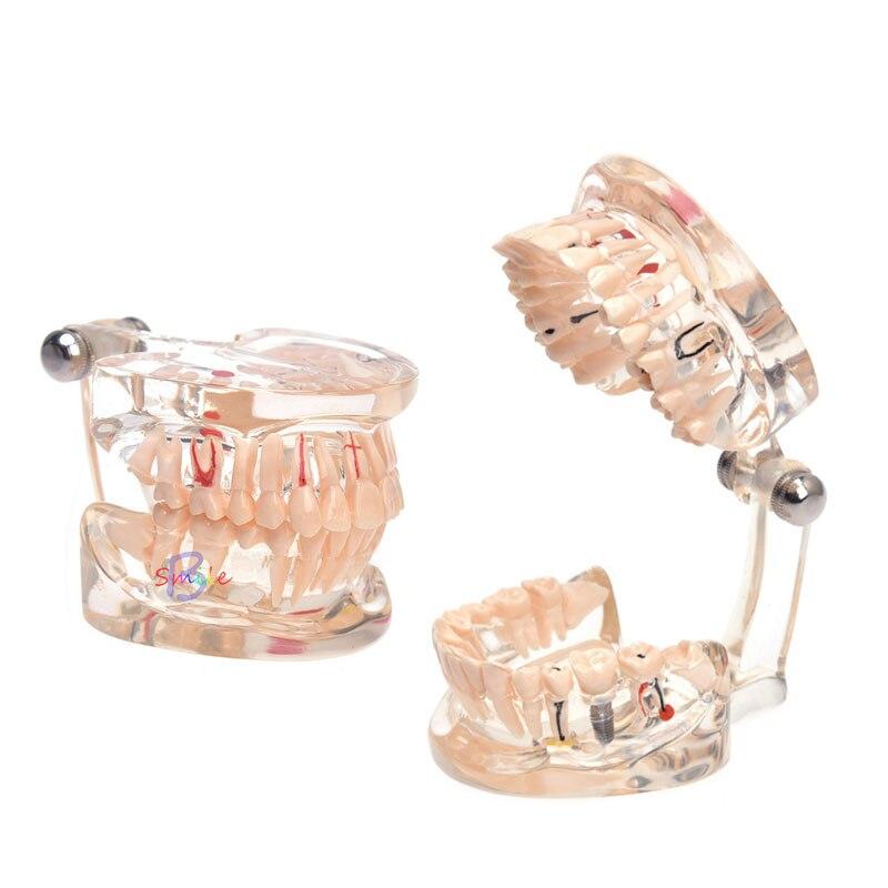 novo modelo dentes implante dental 04