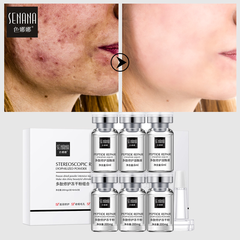 SENANA Peptide Lyophilized Powder Serum Acne Wrinkle Pimples Treatment Epidermal Growth Factor Hydrating Moisturizing Skin Care