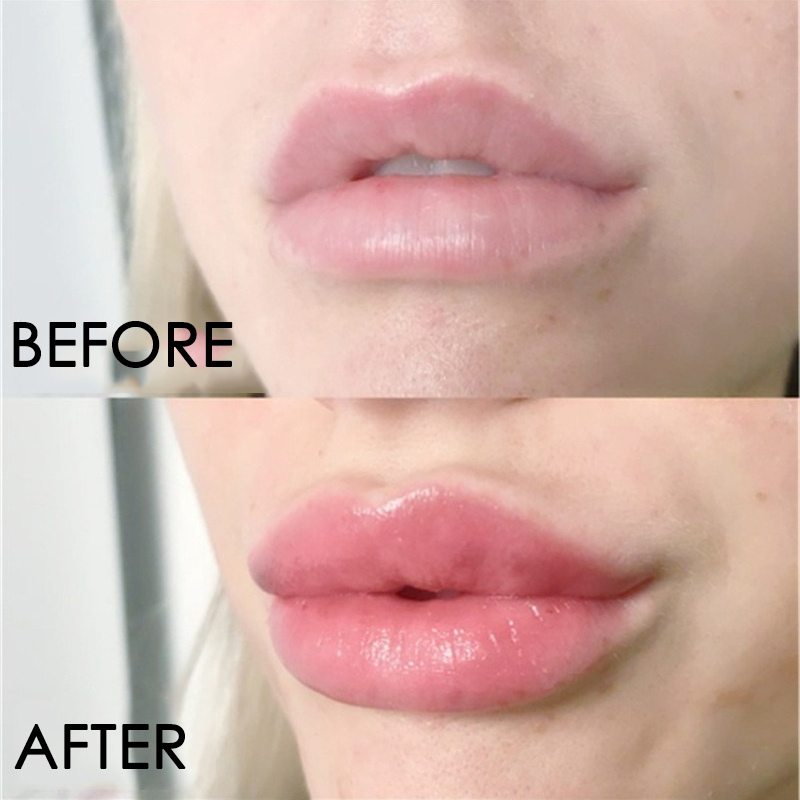 Lip Plumper Serum Moisturizing Lips Repairing Mask  5