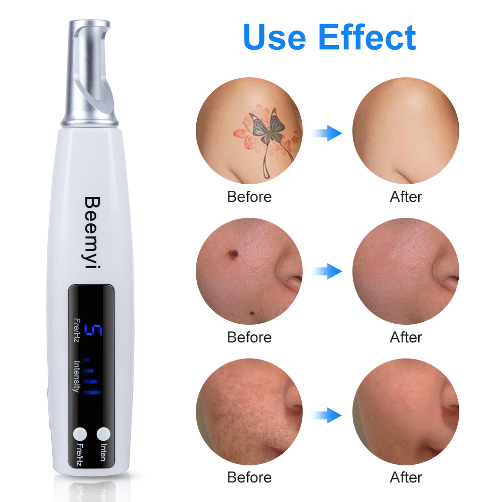 Blue Ray Picosecond Laser Pen Scar Spot Freckle Skin Tag Removal Tattoo Melanin Diluting Machine With Protective Eyeglass Device