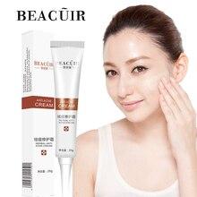 цены BEACUIR Rejuvenation Aloe Vera Acne Beauty Cream Anti-Acne Treatment Face Cream Scar Removal Whitening Moisturizing Shrink Pores