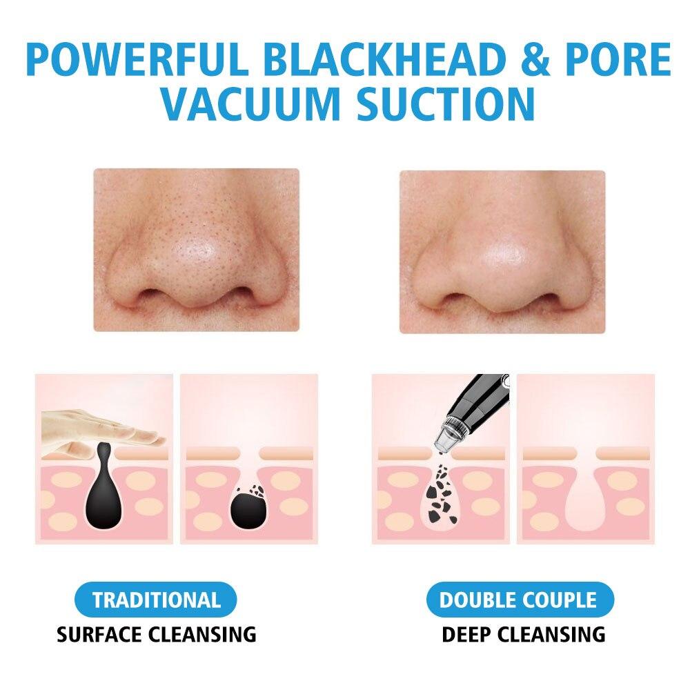 pele acne manchas pretas remoção ferramenta