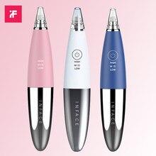 Xiaomi inface removedor de cravos, aspirador elétrico para remoção de espinhas e cravos, para acne, limpeza de beleza facial
