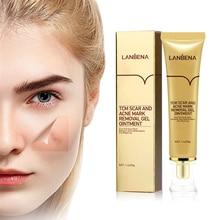 LANBENA acne scar removal cream treatment cicatriz pimple stretch marks remover litteken verwijderen creme face whitening cream