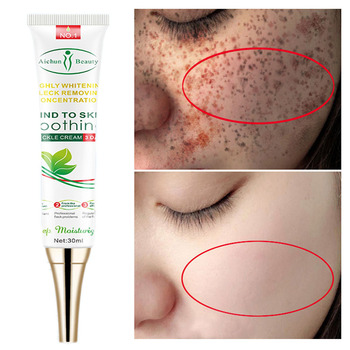 Aichun Whitening Freckle Cream Remove Melasma Acne Spot Lighten Dark Spots Pigment Melanin Hydration Moisturizing Face Care 30ml 1