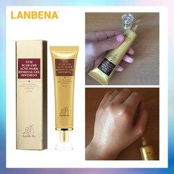 LANBENA acné eliminación de cicatrices crema de reparación de la piel crema facial manchas de acné tratamiento de espinillas blanqueamiento crema estrías marcas 30ml
