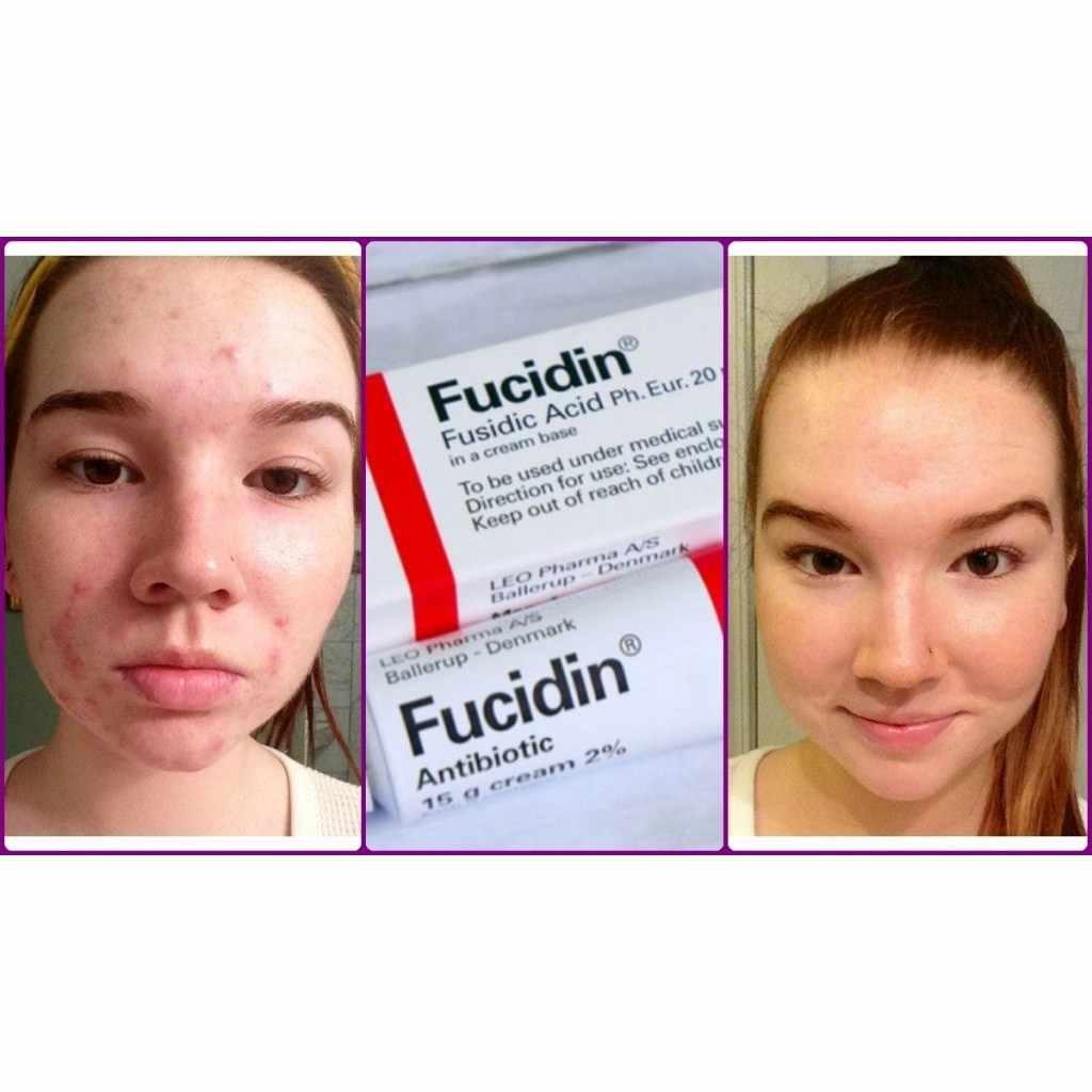 Acne Cream Eliminates Acne 20g Fucidin Cream Aliexpress