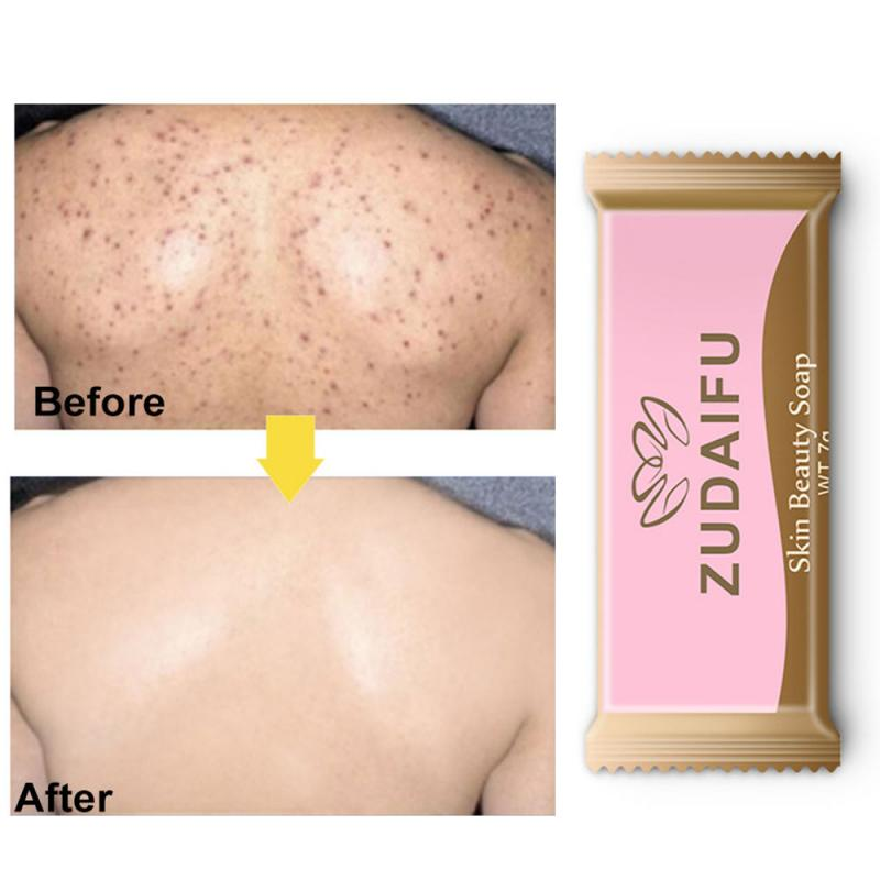 7g Acne Cleaning Sulfur Soap Bath Whitening  Healthy Soap Skin Repair Clearance Acne Psoriasis Body Care  Sulfur Soup TSLM1