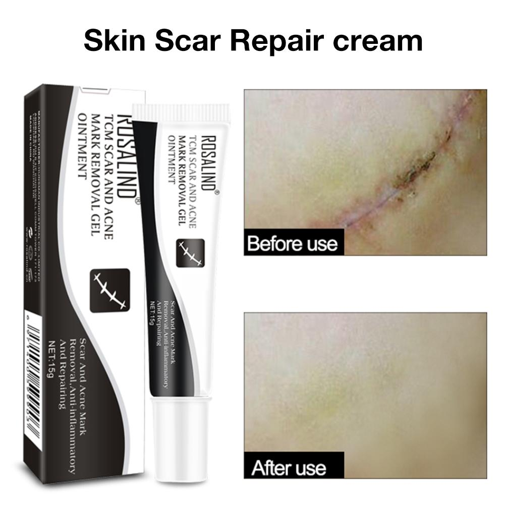 15g Scar Removal Cream Face Cream For Face Acne Scar Stretch Marks Remover Cream Skin Repair Face Cream Burn Scar Marks Relief #