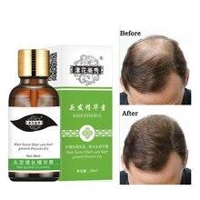 Fast Hair Growth Essence Hair Loss Products Hair Growth Fibras Cabelo Shampoo Cremes De Tratamento Para Cabelos Hair Care