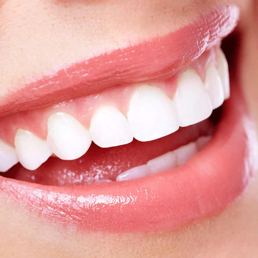 60ml Mousse Toothpaste Teeth Whitening Foam Remove Smoke Stains Natural  Mouth Wash Water Ordinary Hygiene Toothpaste Dental| | - AliExpress