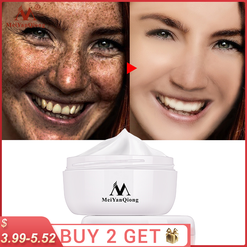 Powerful Whitening Freckle Cream Remove  Acne Spots Melanin Dark Spots Face Lift Firming Face Skin Care Beauty Essentials-0