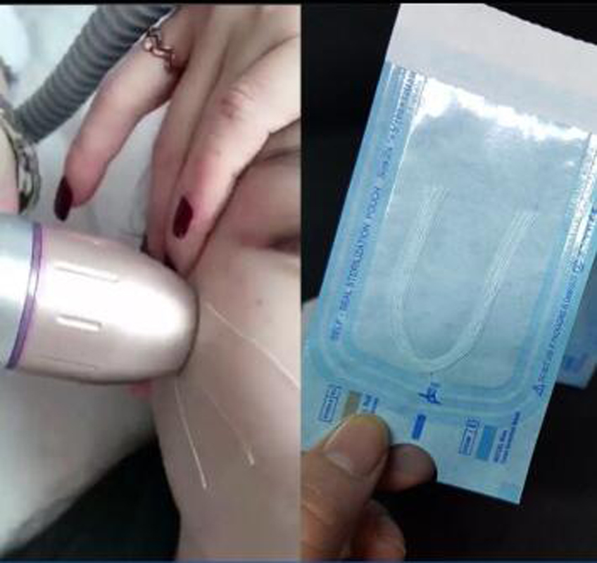 Radar Thread Needle Free Silk Fibroin Line Carving Essence Collagen Facial Thread Lifting Anti-aging Hyaluronic Skin Tightening